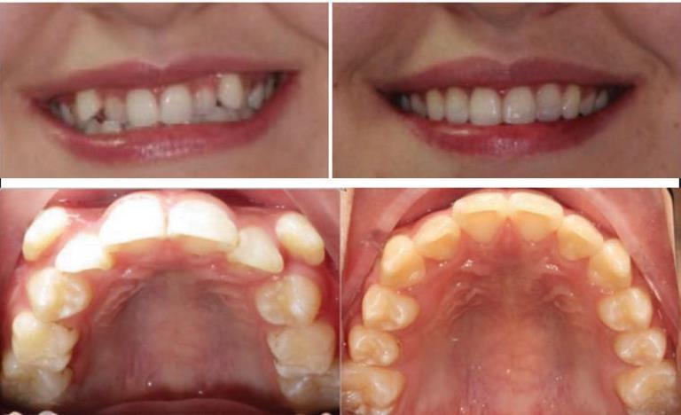 Great Lakes Dental Technologies :: Great Lakes Dental ...